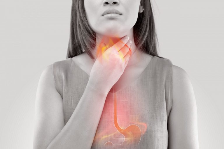 The Great Myth of Acid Reflux