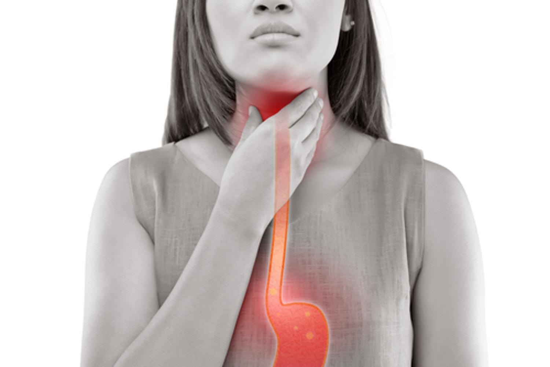 acid reflux woman sufferer